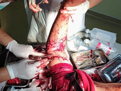 Petugas Polisi yang terluka kena bacok