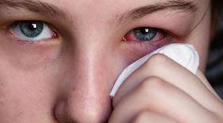 تعرف علي اضرار احمرار العينين وطريقة العلاج