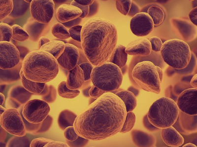 Would You Be Able To Spot These 7 Symptoms Of Leukemia?