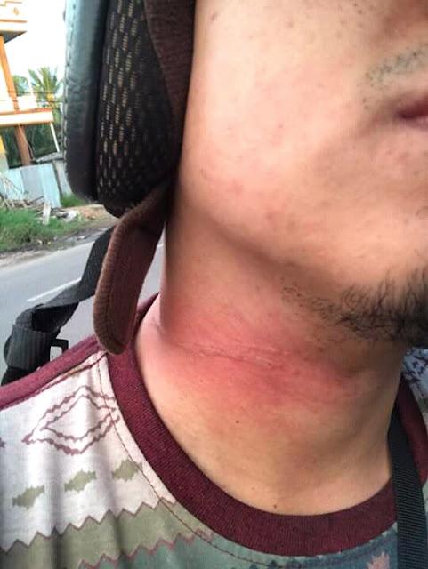 Leher korban yang terjerat tali layangan