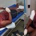 Sem aceitar fim do relacionamento, homem esfaqueia 3 pessoas em Salvador