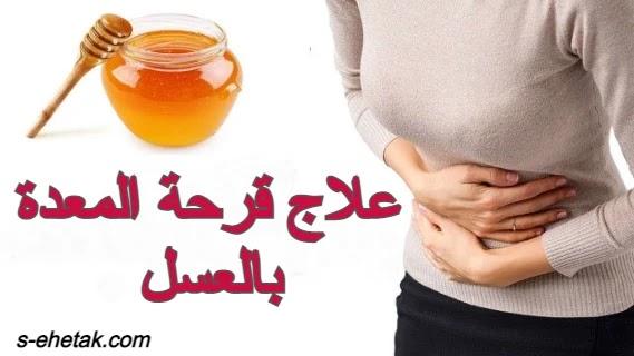 علاج قرحة المعدة بالعسل