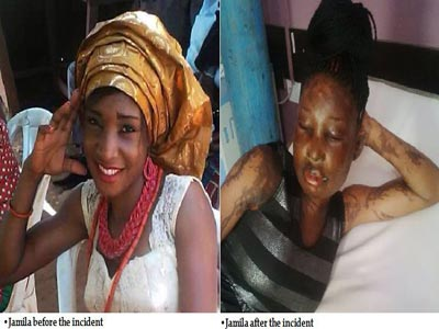 Graphic: Sidechic gets bathed with acid by man's wife