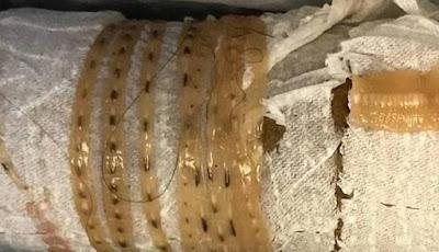 Cacing pita dari dalam perut