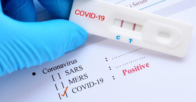 """Il concerto dei Foo Fighters """"solo per vaccinati"""" è stato cancellato dopo che un membro della band ha preso la COVID"""
