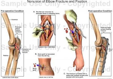 Reduksi terbuka fiksasi internal dengan bone graft