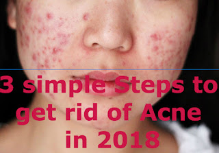 get rid of acne in 2018.jpg
