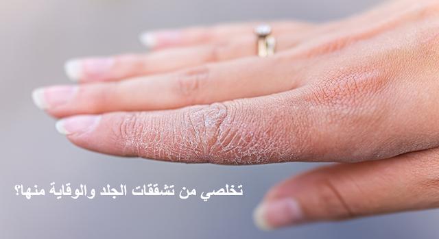 تخلصي من تشققات الجلد والوقاية منها؟