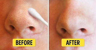 Easy way to deal with blackheads in just 10 minutes