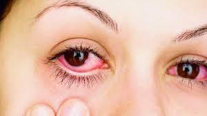 Pengobatan Penyakit Mata Merah Tradisional