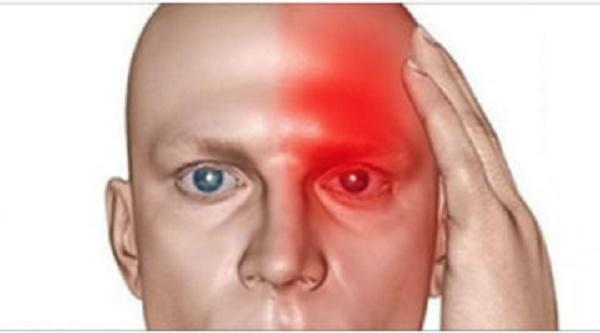 10  Symptômes qui indiquent que vous avez un accident vasculaire cérébral silencieux