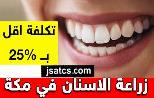 اسعار زراعة الاسنان في مكة