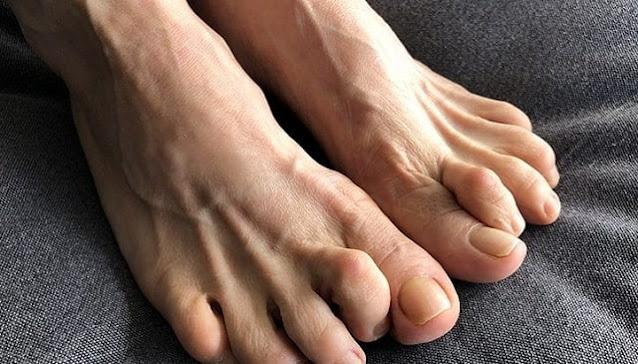 prevent hammertoe treat toes