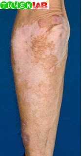 Fig. 5.46 Common variable immunodeficiency with granulomas in vitiligo