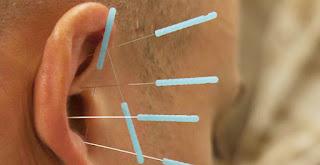 Akupunktur Nasıl Yapılır