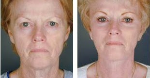 chinese acupressure facelift toning exercises to look
