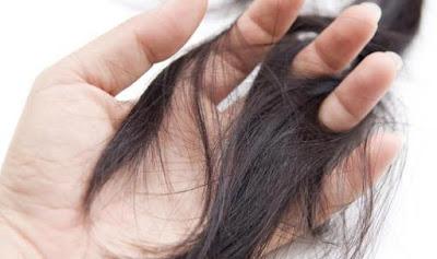Yuk Simak Cara Mengatasi Rambut Rontok Yang Paling Ampuh