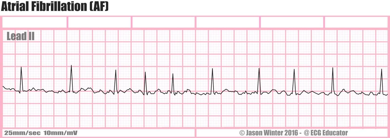 Atrial fibrillation ecg strip images 746