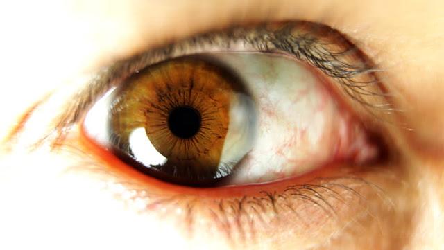 وصفات طبيعية لعلاج السحابه على العين