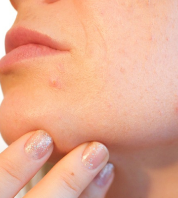 How To Get Rid Of Big Pimples - Get Rid Of Red Pimples