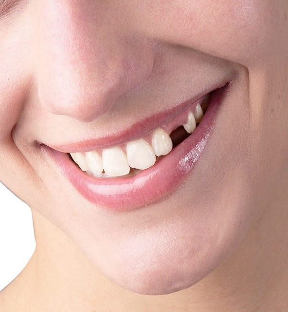 missing front tooth require dental bridge or implant