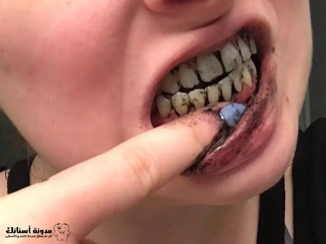 8_منتجات_طبيعية_تساعدك_على_تبييض_أسنانك