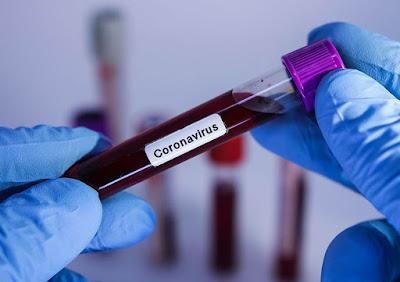Coronavírus :Primeiro caso suspeito em Itapema