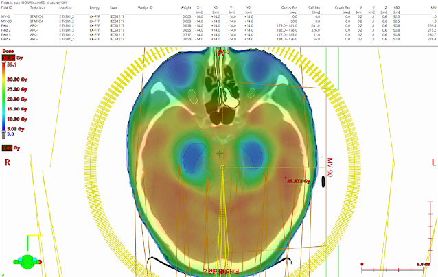 Example of Whole-Brain Radiation