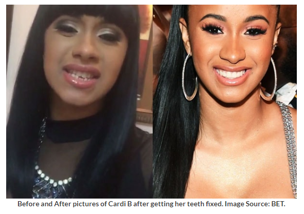 Cardi B Teeth Before And After Pics And Cost Cardi B Bio