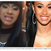 Cardi B Teeth Before and After Pics and Cost