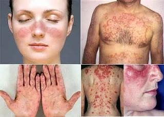 Ketahui Aspek Penting Soal Penyakit Lupus