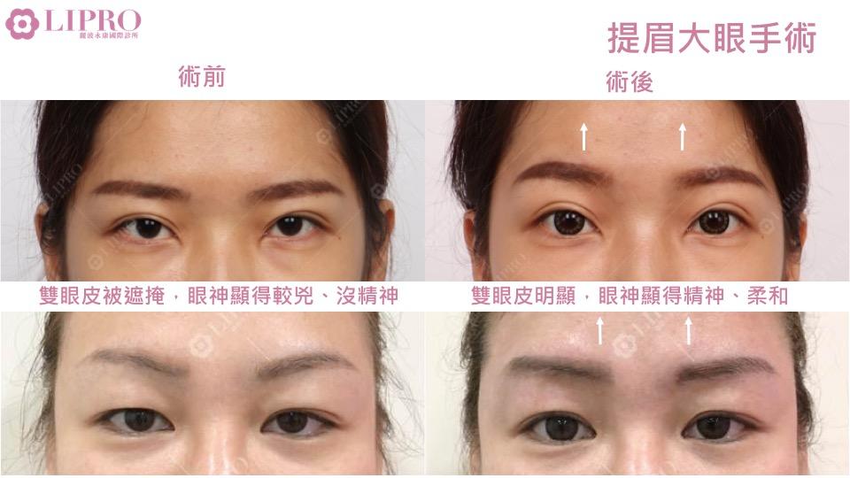 臉部精雕|自體脂肪補臉|顯微套管臉部抽脂|提眉大眼|全臉複合式治療