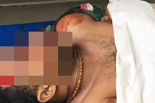 Assaltantes são mortos após confronto com Polícia de Remigio