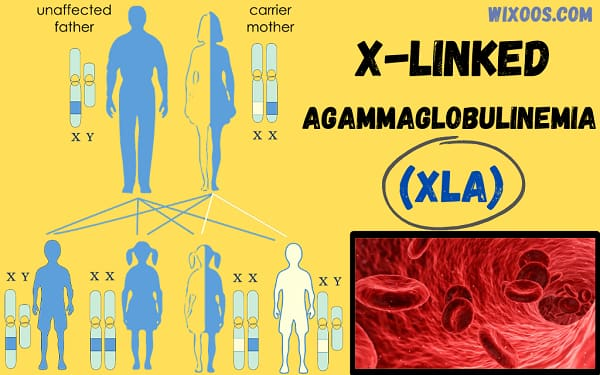 X-linked Agammaglobulinemia: Reduces ability to produce antibodies