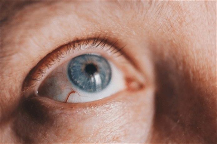 Keratit Sebebi, Belirtileri ve Tedavisi Nedir?