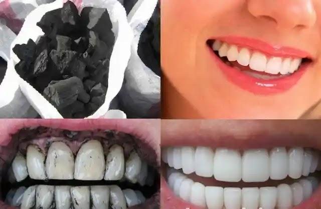 كيفية تبييض الأسنان في المنزل بالفحم المنشط .