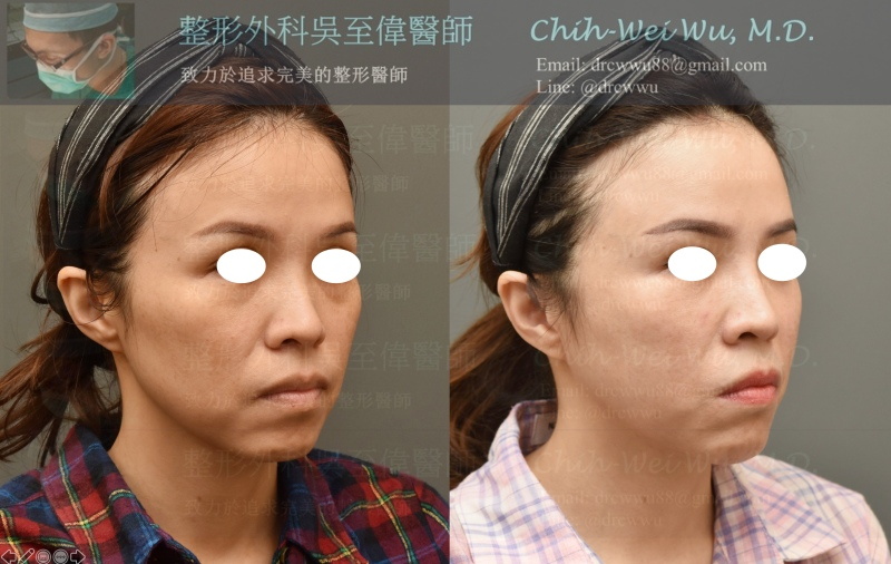 2020年7月最新自體脂肪補臉案例側面照,全臉補脂合併電波拉皮,同時改善臉部凹陷和鬆弛兩大老化問題;自體脂肪移植部位:額頭,山根,淚溝,蘋果肌,下巴,臉頰。