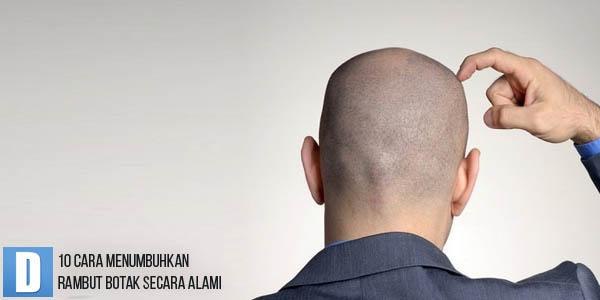 Cara Menumbuhkan Rambut, Penumbuh Rambut Botak, Cara Menumbuhkan Rambut Botak Secara Alami, Menumbuhkan Rambut Botak, Obat Penumbuh Rambut Botak Secara Alami