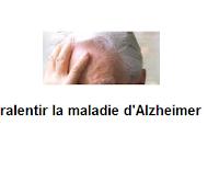 La maladie d'Alzheimer, est la  défaillance des capacités mentales.