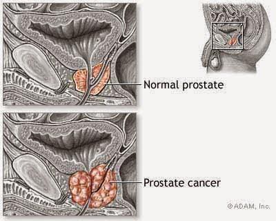 apa yg dimaksud kanker prostat