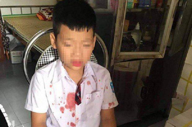 """Bé trai lớp 1 bị người đàn ông hành hung để """"trả thù"""" đang hoảng loạn, không muốn đến trường"""