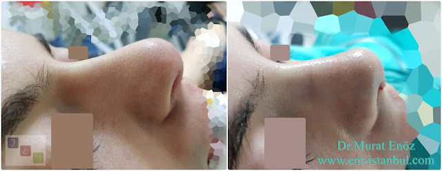 Natural nose reshaping,Natural nose job,Natural rhinoplasty in Istanbul,Natural looking rhinoplasty,Natural rhinoplasty in Turkey,Natural rhinoplasty techniques,Natural nose job in Istanbul,