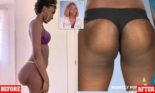 La chirurgie brésilienne des fesses pourrait être mortel pour votre santé