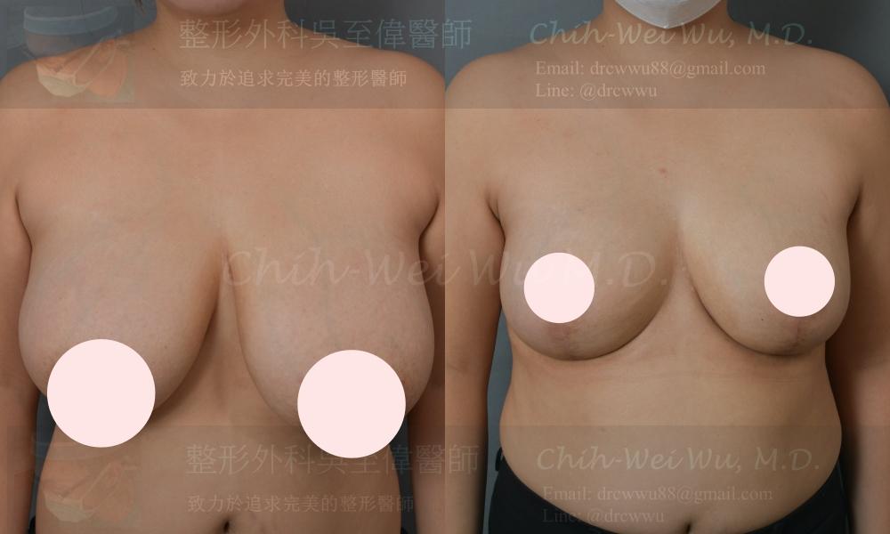 產後胸部下垂,左右不對稱,此次接受提乳手術,合併自體脂肪填補上胸,術後胸型對稱自然,上胸飽滿,提乳手術權威吳至偉醫師
