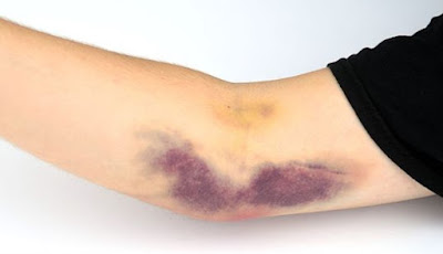 The Causes of Spontaneous Skin Hematoma
