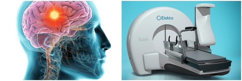 Gamma Knife: Beyin Cerrahisinde Ameliyatsız Dönem