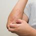 Dry Skin or Psoriasis?