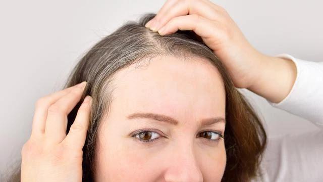 rambut uban