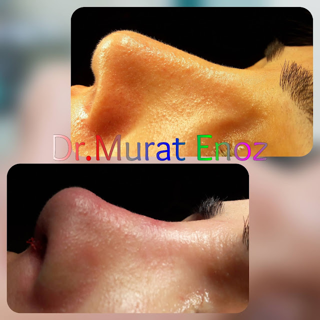 Nasal Tip Plasty and Nose Tip Lifting in Istanbul, Turkey