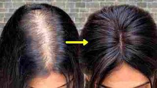 افضل علاج لانبات الشعر وتكثيفه